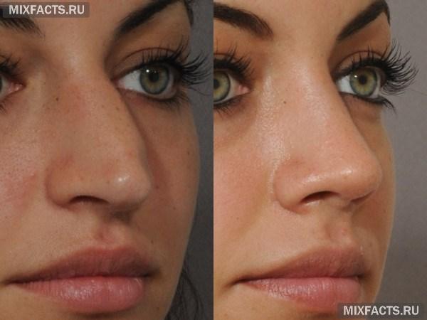 Изменить форму носа с помощью ринопластики