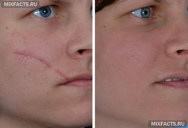 Лазерное удаление шрамов и шлифовка рубцов после процедуры