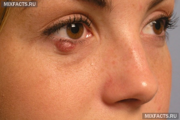 Как вылечить ячмень на глазу: что помогает быстро и эффективно?