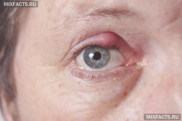 Как вылечить ячмень на глазу?