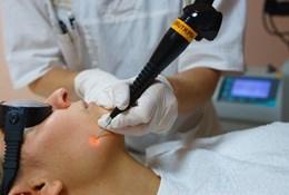 Как проходит удаление жировика лазером на лице и теле?