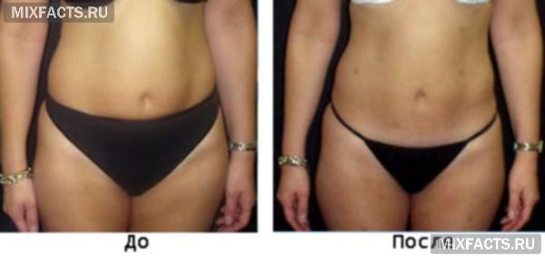 Озонотерапия для похудения живота
