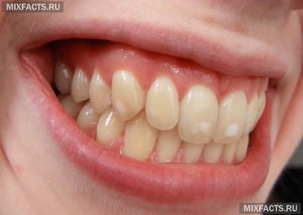 Белое пятно на зубе: причины и лечение